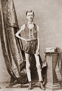 220px-Isaac_W_Sprague,_living_skeleton,_1867